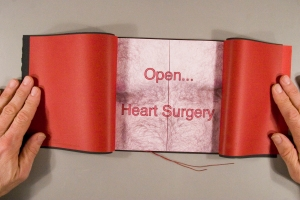 Open ... Heart Surgery by Michael Peven.